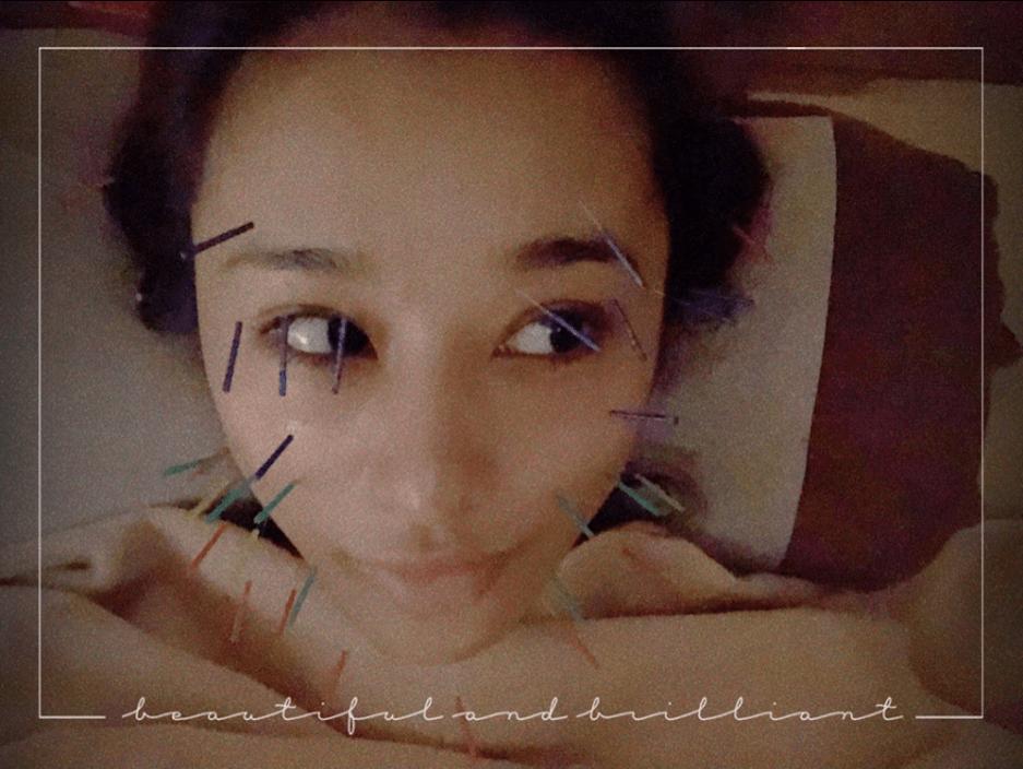 """高橋メアリージュン、顔じゅう美容鍼だらけの""""ハリネズミshot""""公開に反響サムネイル画像"""